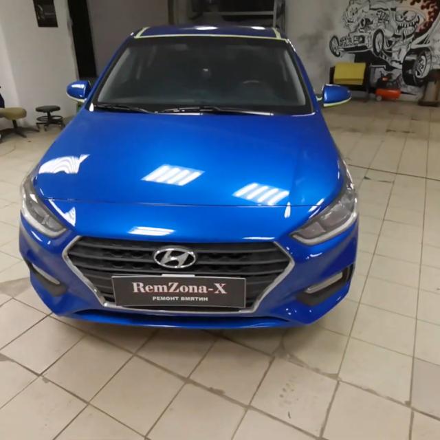 Видео ремонта вмятин на автомобиле Hyundai Solaris